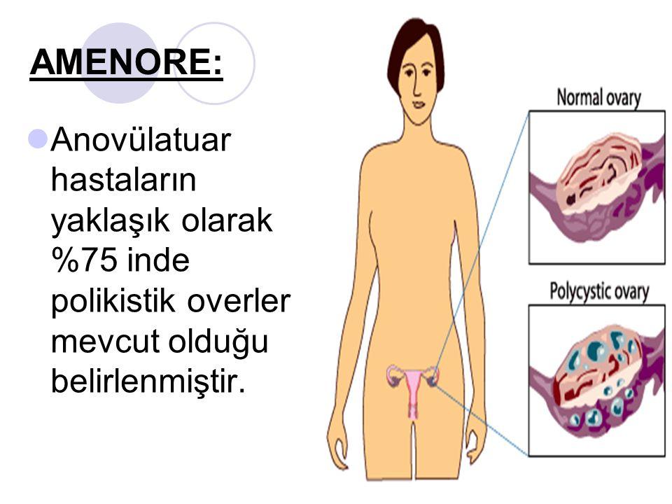 AMENORE: Anovülatuar hastaların yaklaşık olarak %75 inde polikistik overler mevcut olduğu belirlenmiştir.