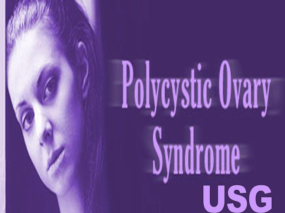 MFO VE PCO OVER AYRIMI: A- Eksternal morfolojik bulgular: Artmış ovaryan alan veya volüm Artmış yuvarlak index (ovaryan genişlik/ovaryan uzunluk) Azalmış uterin genişlik B- İnternal morfolojik bulgular: Çok sayıda mikrokist Mikrokistlerin periferal dağılımı Ovaryan stromanın artmış ekojenitesi