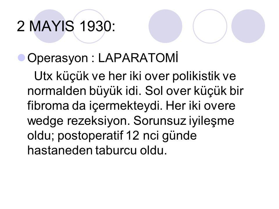 2 MAYIS 1930: Operasyon : LAPARATOMİ Utx küçük ve her iki over polikistik ve normalden büyük idi. Sol over küçük bir fibroma da içermekteydi. Her iki