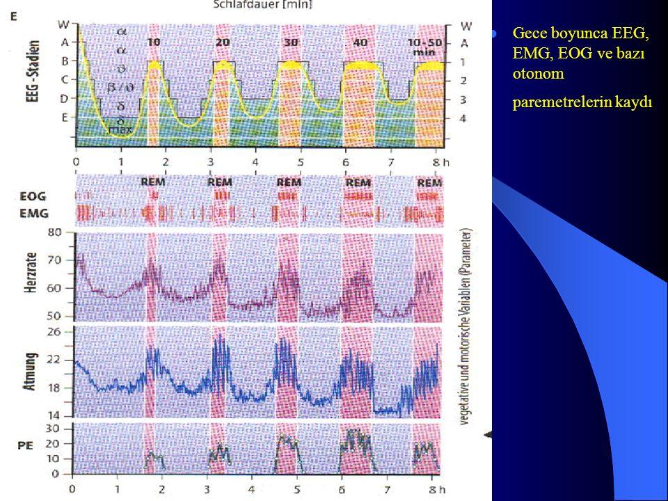 Gece boyunca EEG, EMG, EOG ve bazı otonom paremetrelerin kaydı