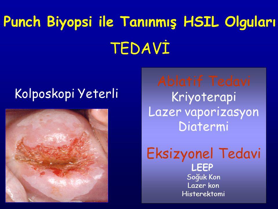 Punch Biyopsi ile Tanınmış HSIL Olguları TEDAVİ Kolposkopi Yeterli Ablatif Tedavi Kriyoterapi Lazer vaporizasyon Diatermi Eksizyonel Tedavi LEEP Soğuk Kon Lazer kon Histerektomi