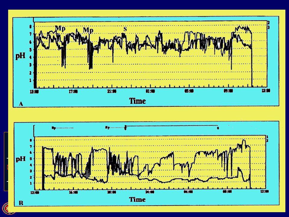 GÖRH teşhisinde invaziv testler. Ne zaman? Bariumlu esophagogram -Disfaji 24 h. esophageal pH monitoring -Atipik semptomlar -PPI tedavisine yetersiz c