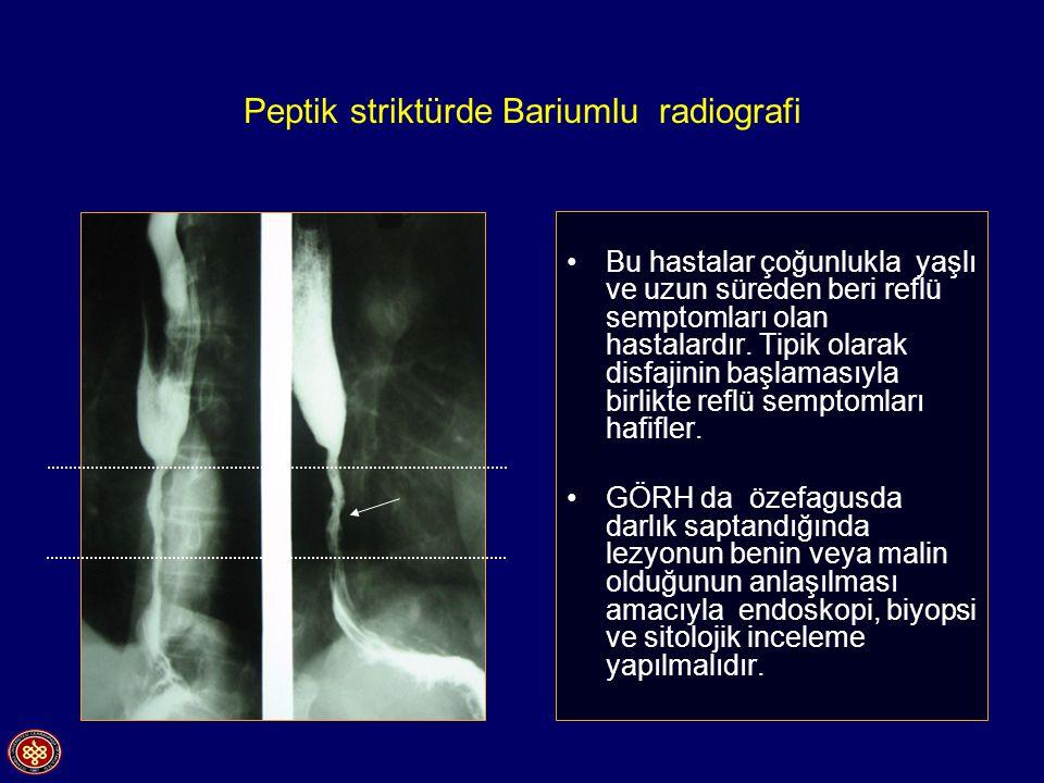 Peptik striktürde Bariumlu radiografi Bu hastalar çoğunlukla yaşlı ve uzun süreden beri reflü semptomları olan hastalardır. Tipik olarak disfajinin ba