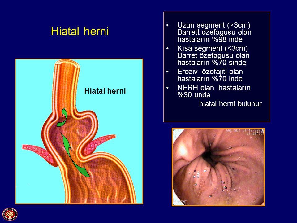 Hiatal herni Uzun segment (>3cm) Barrett özefagusu olan hastaların %98 inde Kısa segment (<3cm) Barret özefagusu olan hastaların %70 sinde Eroziv özofajiti olan hastaların %70 inde NERH olan hastaların %30 unda hiatal herni bulunur Hiatal herni
