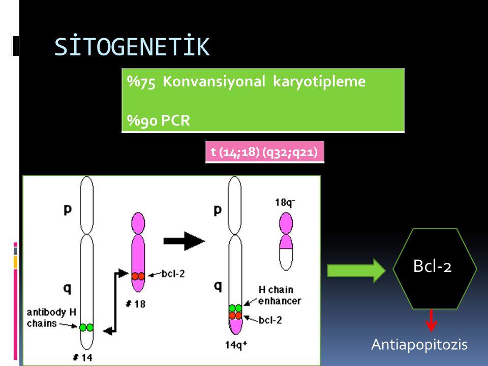SİTOGENETİK %75 Konvansiyonal karyotipleme %90 PCR t (14;18) (q32;q21) Bcl-2 Antiapopitozis