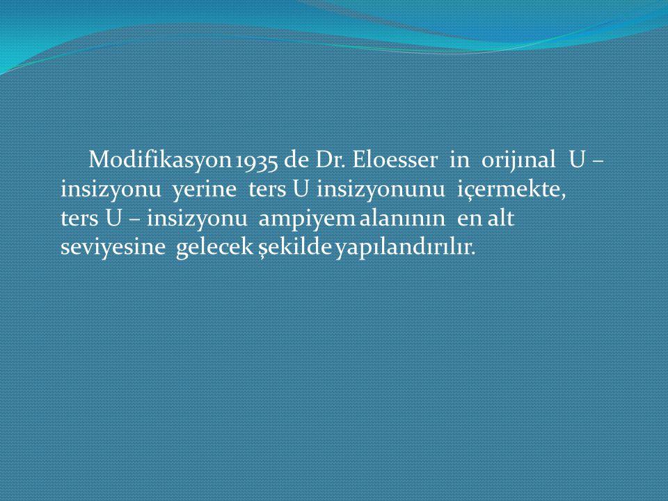 Modifikasyon 1935 de Dr. Eloesser in orijınal U – insizyonu yerine ters U insizyonunu içermekte, ters U – insizyonu ampiyem alanının en alt seviyesine