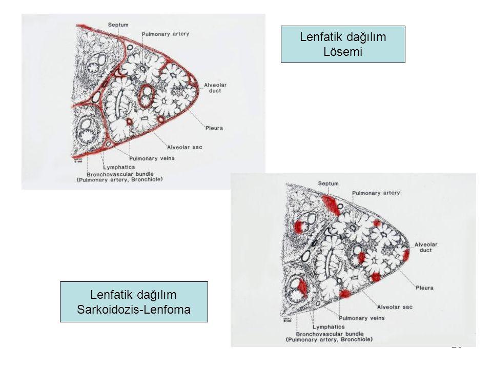 28 Lenfatik dağılım Lösemi Lenfatik dağılım Sarkoidozis-Lenfoma
