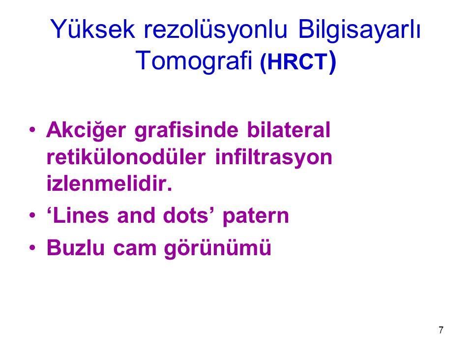 7 Akciğer grafisinde bilateral retikülonodüler infiltrasyon izlenmelidir. 'Lines and dots' patern Buzlu cam görünümü Yüksek rezolüsyonlu Bilgisayarlı