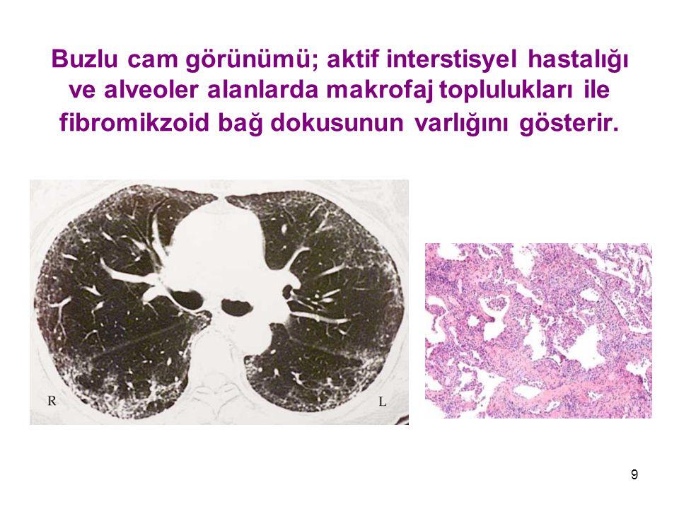 9 Buzlu cam görünümü; aktif interstisyel hastalığı ve alveoler alanlarda makrofaj toplulukları ile fibromikzoid bağ dokusunun varlığını gösterir.