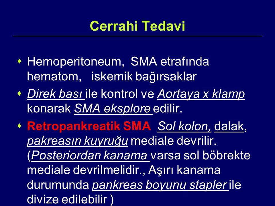 Cerrahi Tedavi  Hemoperitoneum, SMA etrafında hematom, iskemik bağırsaklar  Direk bası ile kontrol ve Aortaya x klamp konarak SMA eksplore edilir. 