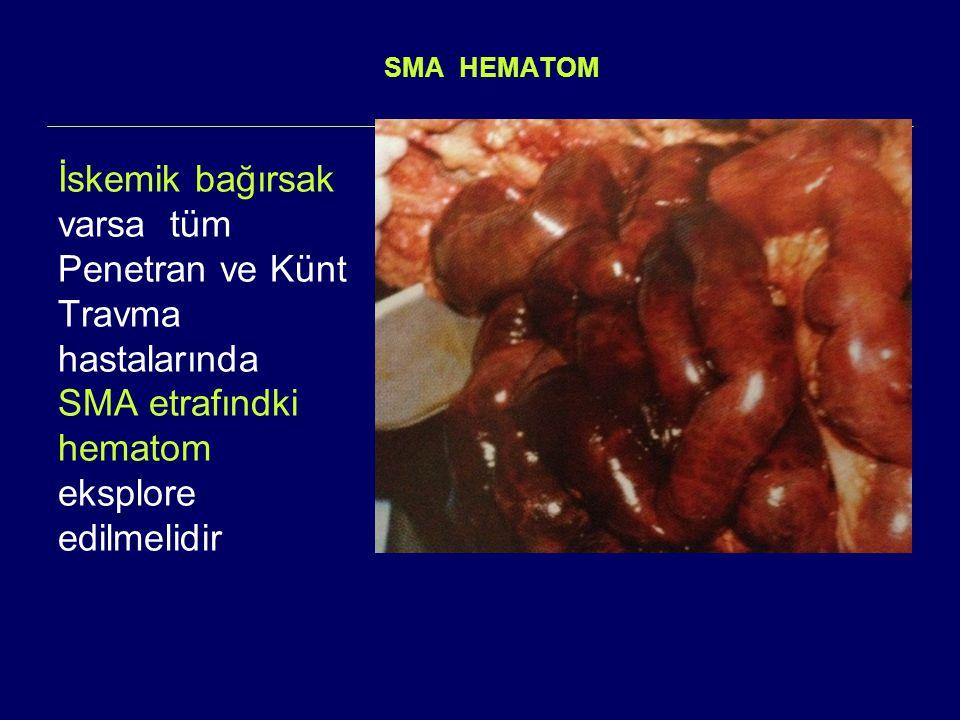 SMA HEMATOM İskemik bağırsak varsa tüm Penetran ve Künt Travma hastalarında SMA etrafındki hematom eksplore edilmelidir
