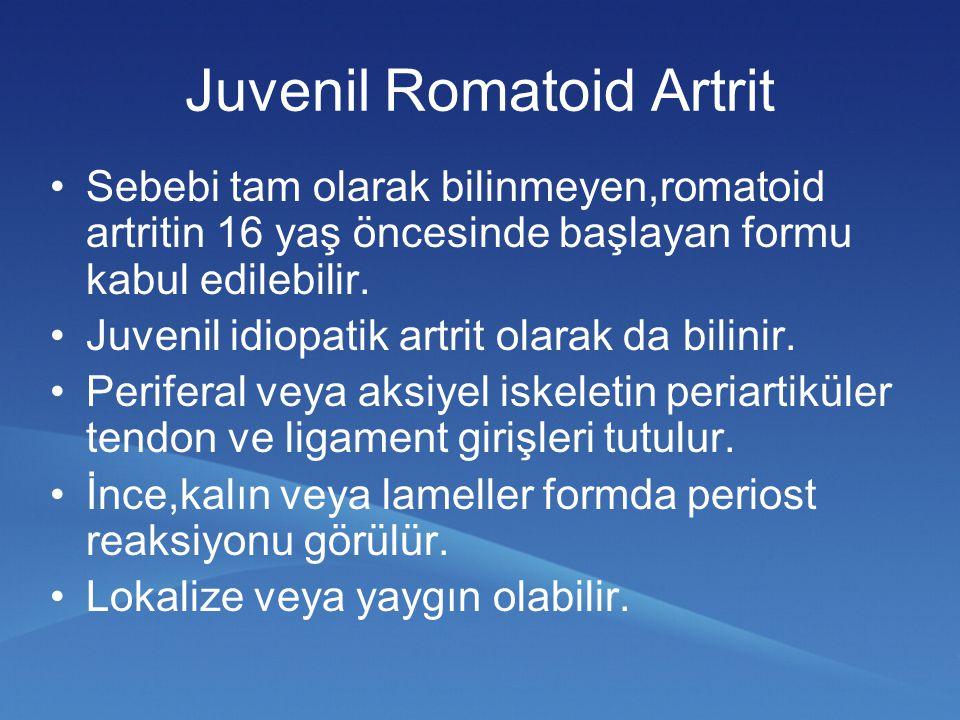 Juvenil Romatoid Artrit Sebebi tam olarak bilinmeyen,romatoid artritin 16 yaş öncesinde başlayan formu kabul edilebilir.