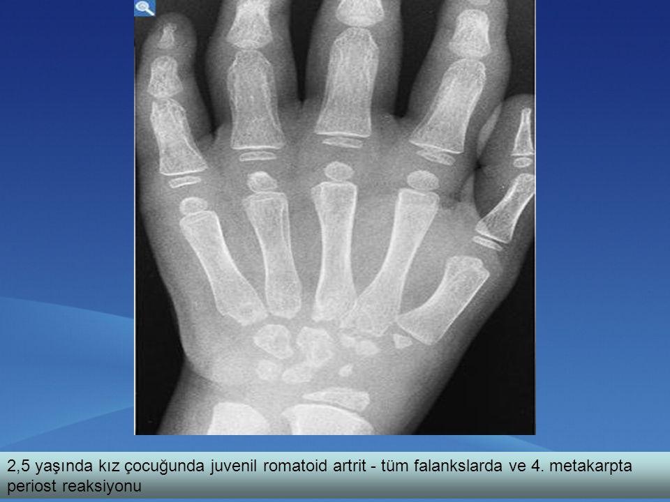 2,5 yaşında kız çocuğunda juvenil romatoid artrit - tüm falankslarda ve 4. metakarpta periost reaksiyonu