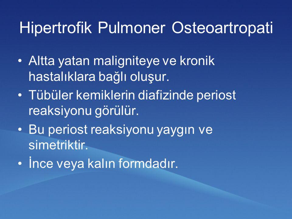 Hipertrofik Pulmoner Osteoartropati Altta yatan maligniteye ve kronik hastalıklara bağlı oluşur. Tübüler kemiklerin diafizinde periost reaksiyonu görü