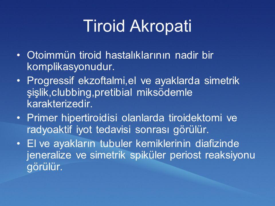 Tiroid Akropati Otoimmün tiroid hastalıklarının nadir bir komplikasyonudur. Progressif ekzoftalmi,el ve ayaklarda simetrik şişlik,clubbing,pretibial m