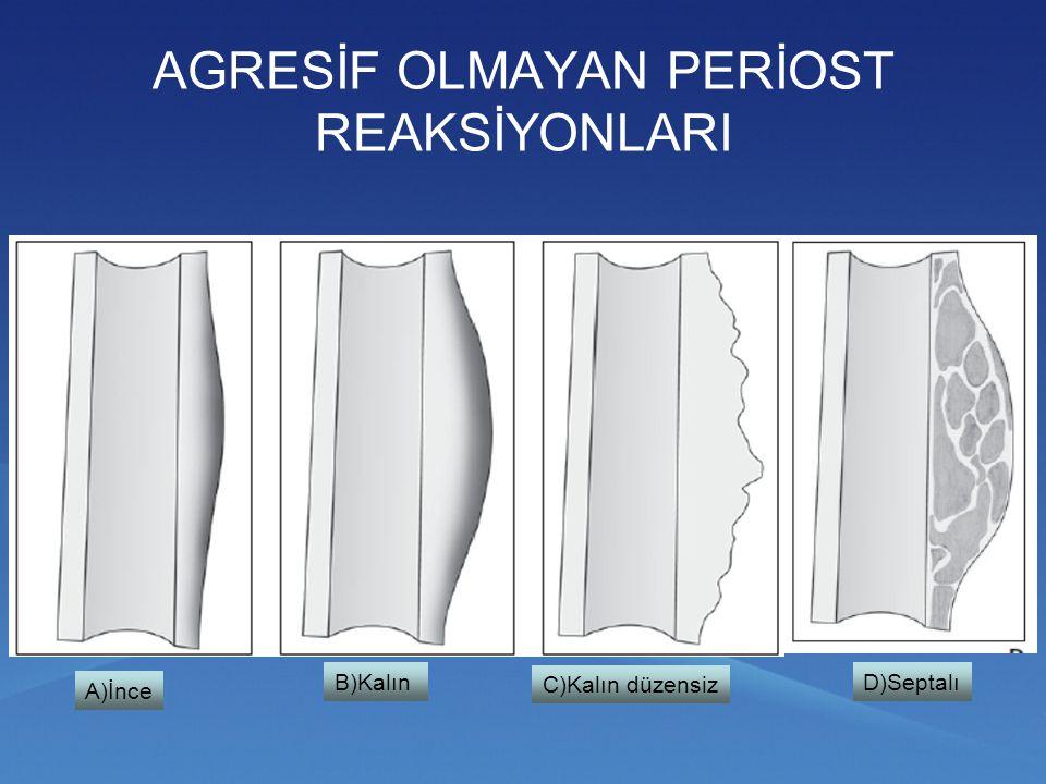 Metafizde güve yeniği görünümü - dizorganize periost reaksiyonu (lenfoma)