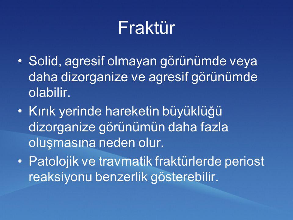 Fraktür Solid, agresif olmayan görünümde veya daha dizorganize ve agresif görünümde olabilir.