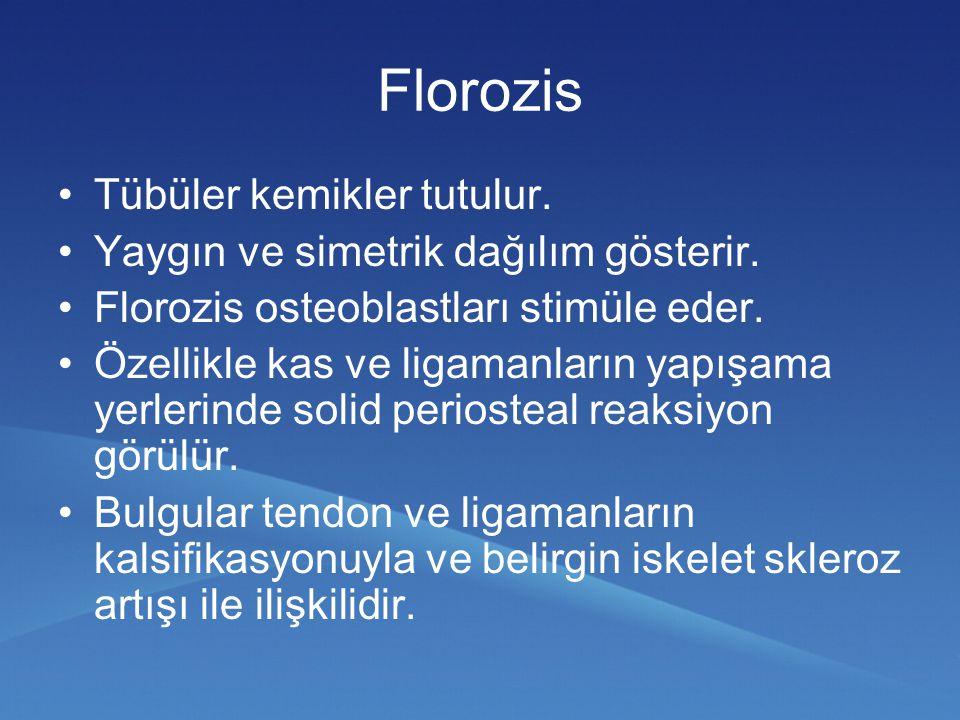 Florozis Tübüler kemikler tutulur. Yaygın ve simetrik dağılım gösterir. Florozis osteoblastları stimüle eder. Özellikle kas ve ligamanların yapışama y