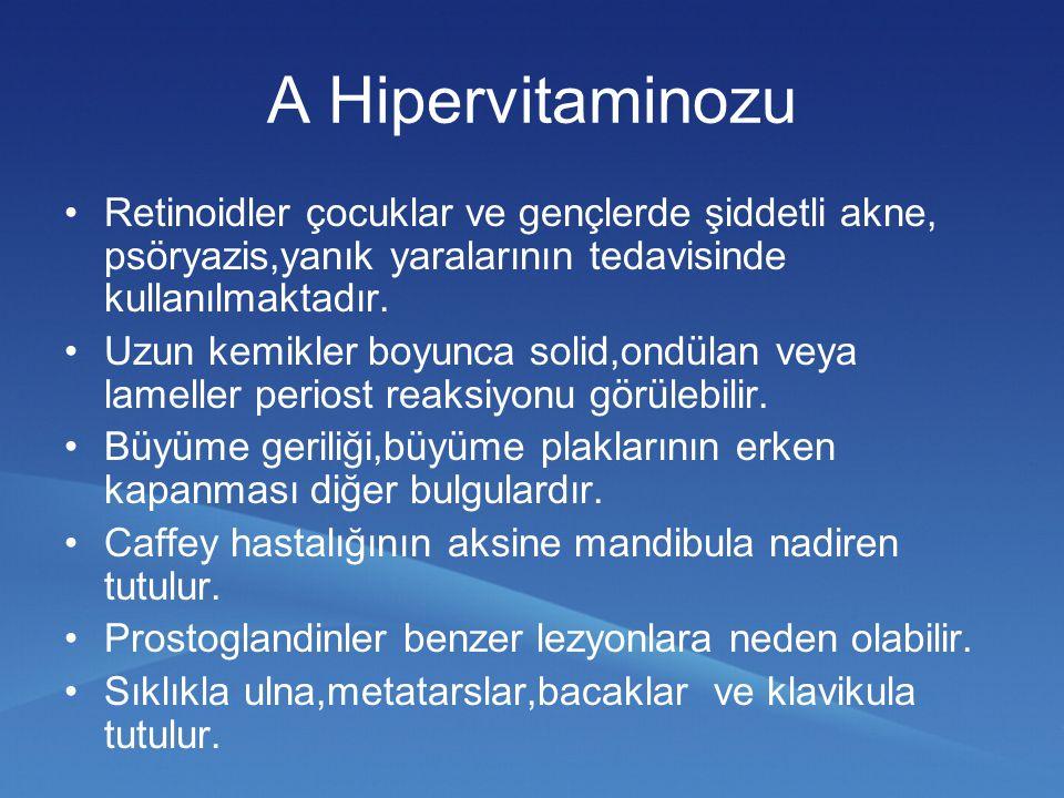 A Hipervitaminozu Retinoidler çocuklar ve gençlerde şiddetli akne, psöryazis,yanık yaralarının tedavisinde kullanılmaktadır. Uzun kemikler boyunca sol