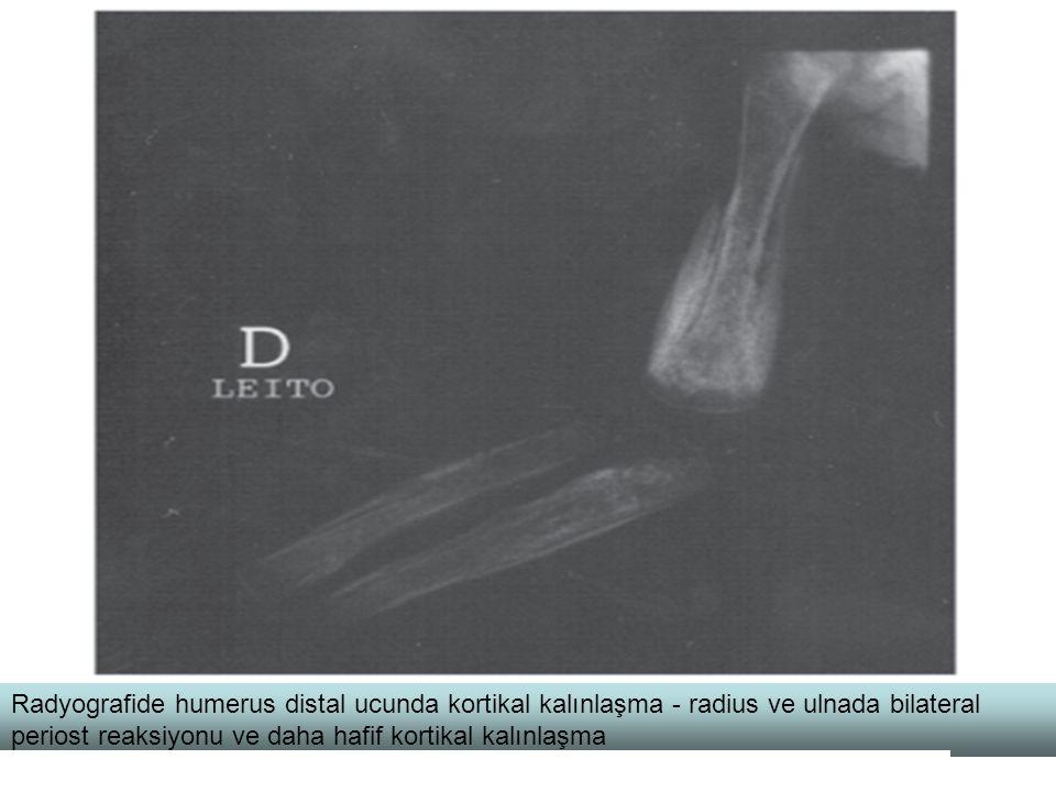 Radyografide humerus distal ucunda kortikal kalınlaşma - radius ve ulnada bilateral periost reaksiyonu ve daha hafif kortikal kalınlaşma