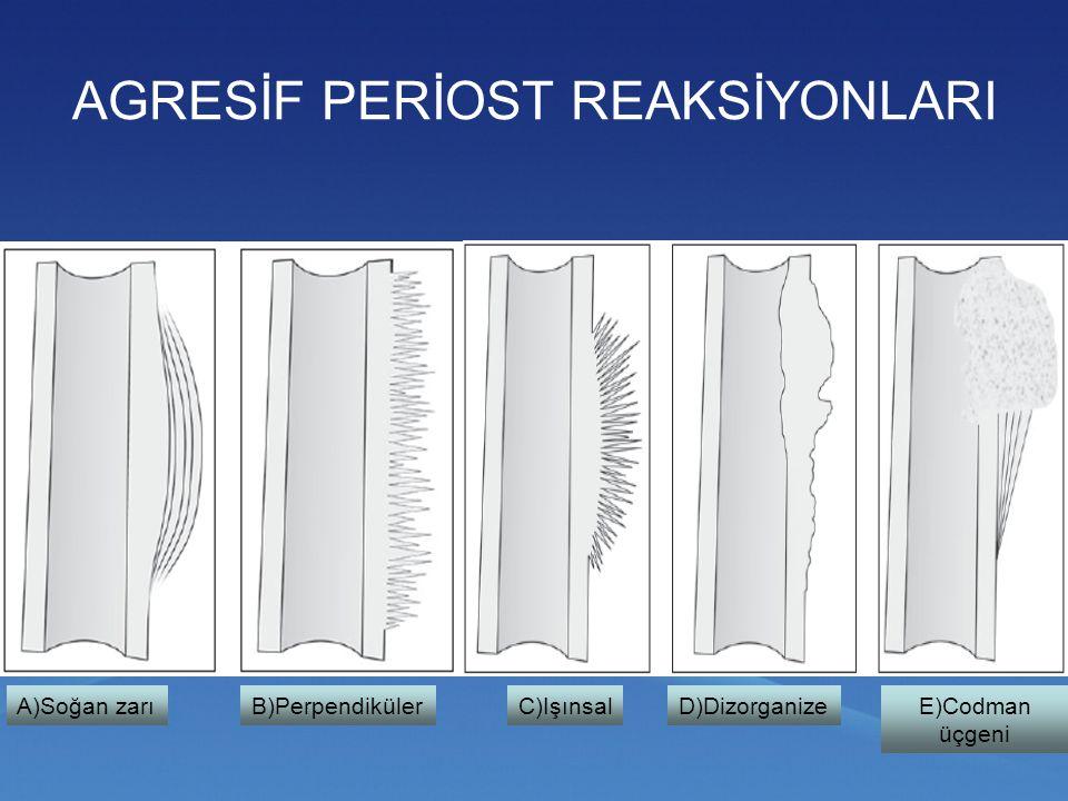 Sklerotik prostat metastazı (kalın ok) – Codman üçgeni (ince ok)