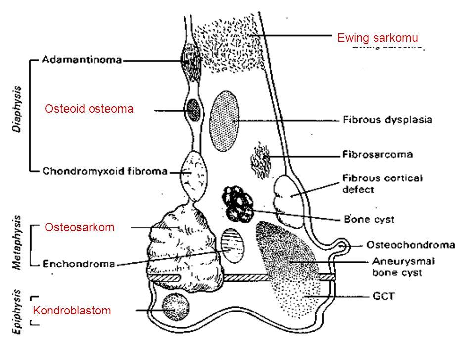 Osteoid osteoma Kondroblastom Osteosarkom Ewing sarkomu