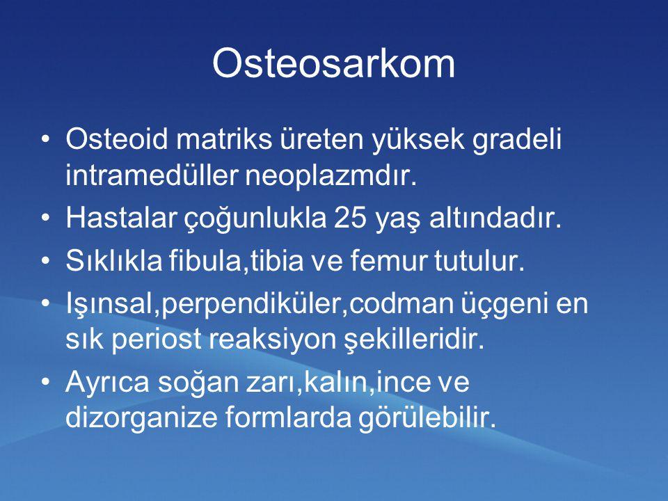 Osteosarkom Osteoid matriks üreten yüksek gradeli intramedüller neoplazmdır. Hastalar çoğunlukla 25 yaş altındadır. Sıklıkla fibula,tibia ve femur tut