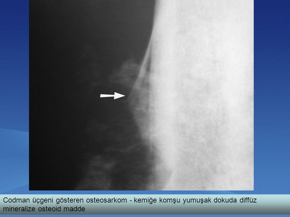 Codman üçgeni gösteren osteosarkom - kemiğe komşu yumuşak dokuda diffüz mineralize osteoid madde