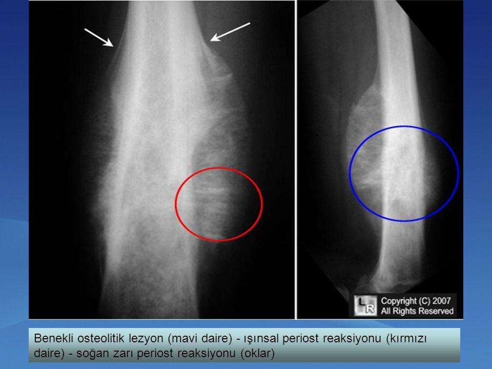 Benekli osteolitik lezyon (mavi daire) - ışınsal periost reaksiyonu (kırmızı daire) - soğan zarı periost reaksiyonu (oklar)