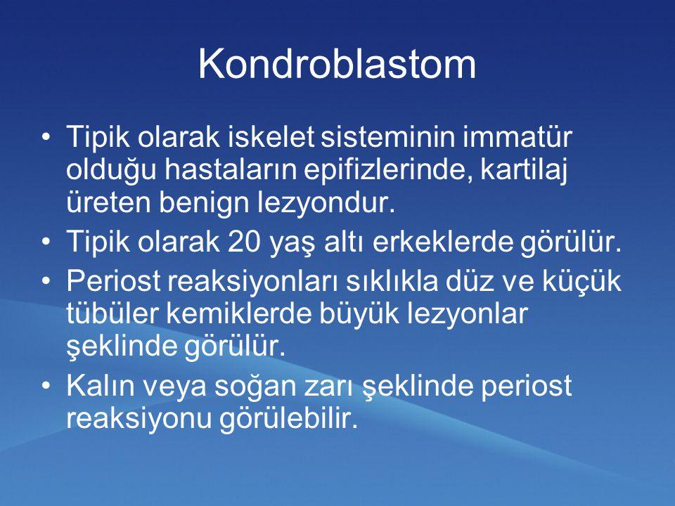Kondroblastom Tipik olarak iskelet sisteminin immatür olduğu hastaların epifizlerinde, kartilaj üreten benign lezyondur. Tipik olarak 20 yaş altı erke