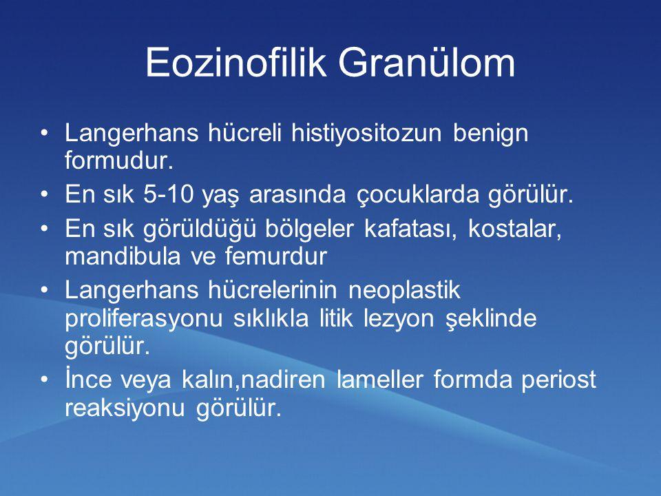 Eozinofilik Granülom Langerhans hücreli histiyositozun benign formudur. En sık 5-10 yaş arasında çocuklarda görülür. En sık görüldüğü bölgeler kafatas