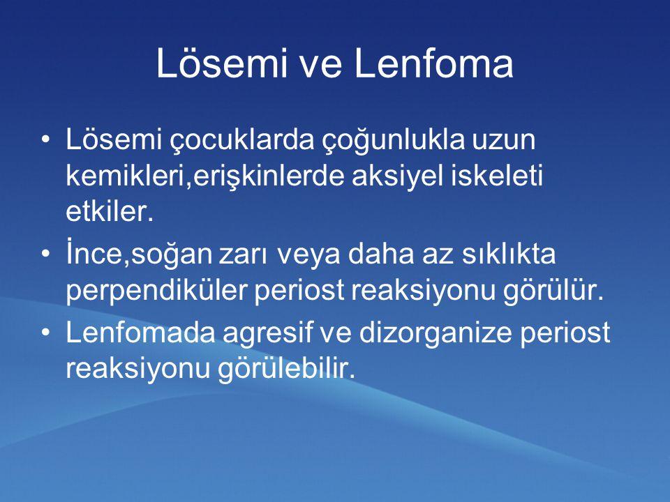 Lösemi ve Lenfoma Lösemi çocuklarda çoğunlukla uzun kemikleri,erişkinlerde aksiyel iskeleti etkiler. İnce,soğan zarı veya daha az sıklıkta perpendikül