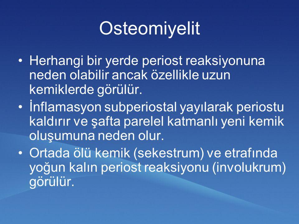 Osteomiyelit Herhangi bir yerde periost reaksiyonuna neden olabilir ancak özellikle uzun kemiklerde görülür. İnflamasyon subperiostal yayılarak perios