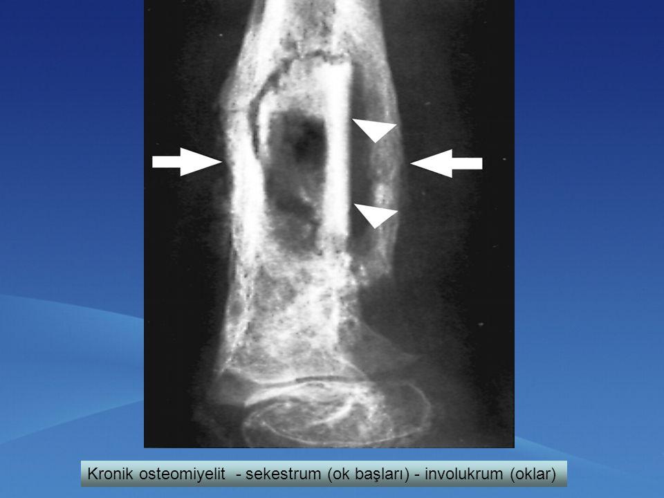 Kronik osteomiyelit - sekestrum (ok başları) - involukrum (oklar)