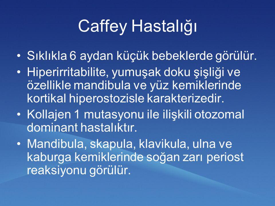 Caffey Hastalığı Sıklıkla 6 aydan küçük bebeklerde görülür. Hiperirritabilite, yumuşak doku şişliği ve özellikle mandibula ve yüz kemiklerinde kortika