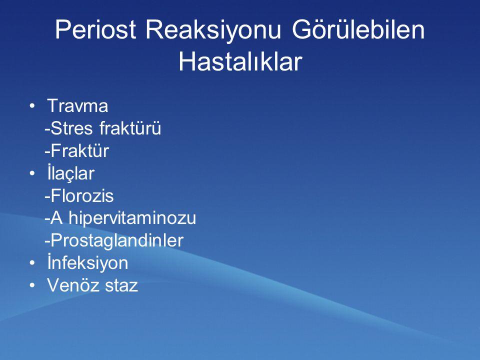 Travma -Stres fraktürü -Fraktür İlaçlar -Florozis -A hipervitaminozu -Prostaglandinler İnfeksiyon Venöz staz Periost Reaksiyonu Görülebilen Hastalıkla