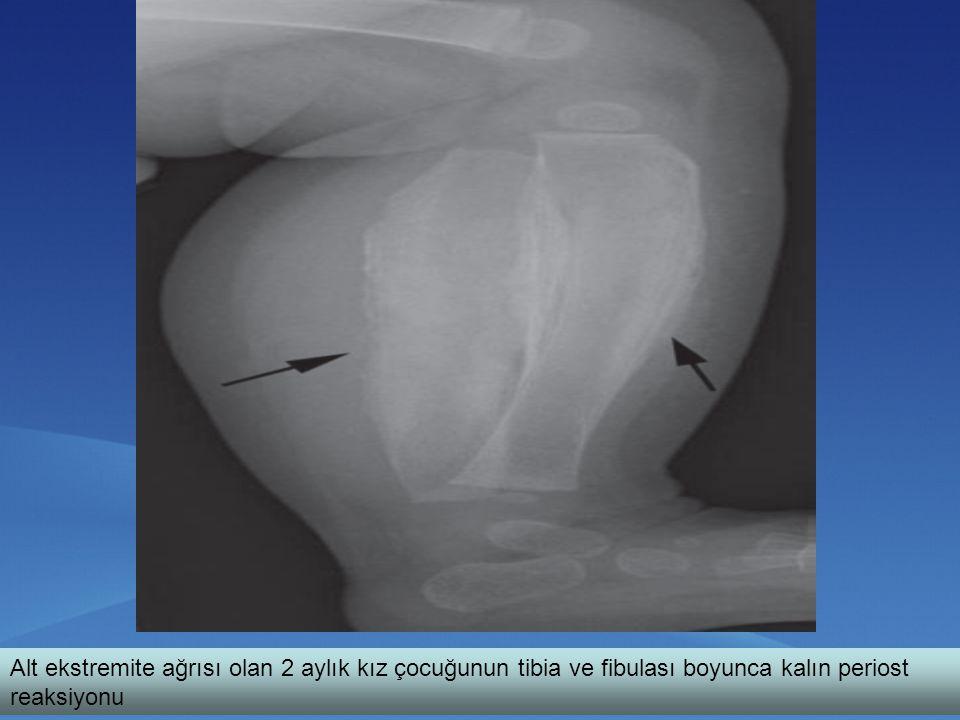 Alt ekstremite ağrısı olan 2 aylık kız çocuğunun tibia ve fibulası boyunca kalın periost reaksiyonu