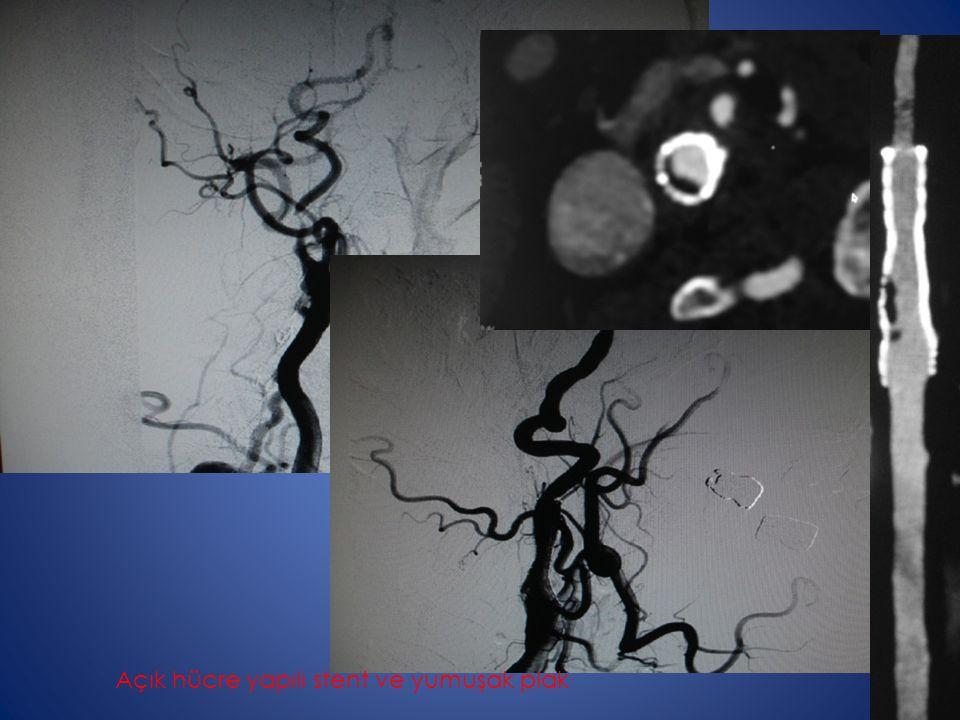 Açık hücre yapılı stent ve yumuşak plak