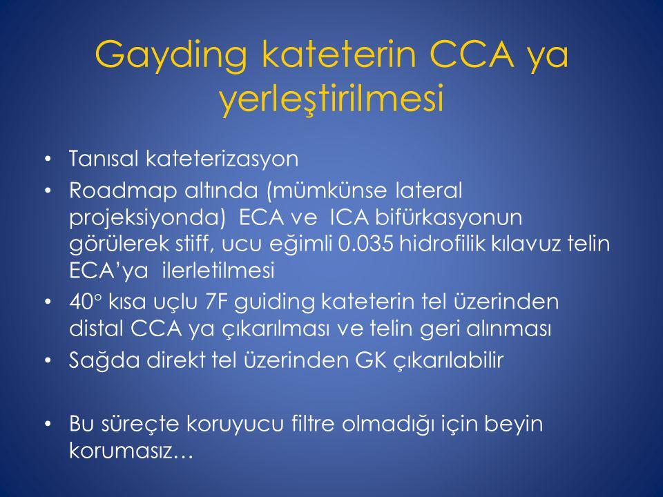 Gayding kateterin CCA ya yerleştirilmesi Tanısal kateterizasyon Roadmap altında (mümkünse lateral projeksiyonda) ECA ve ICA bifürkasyonun görülerek st