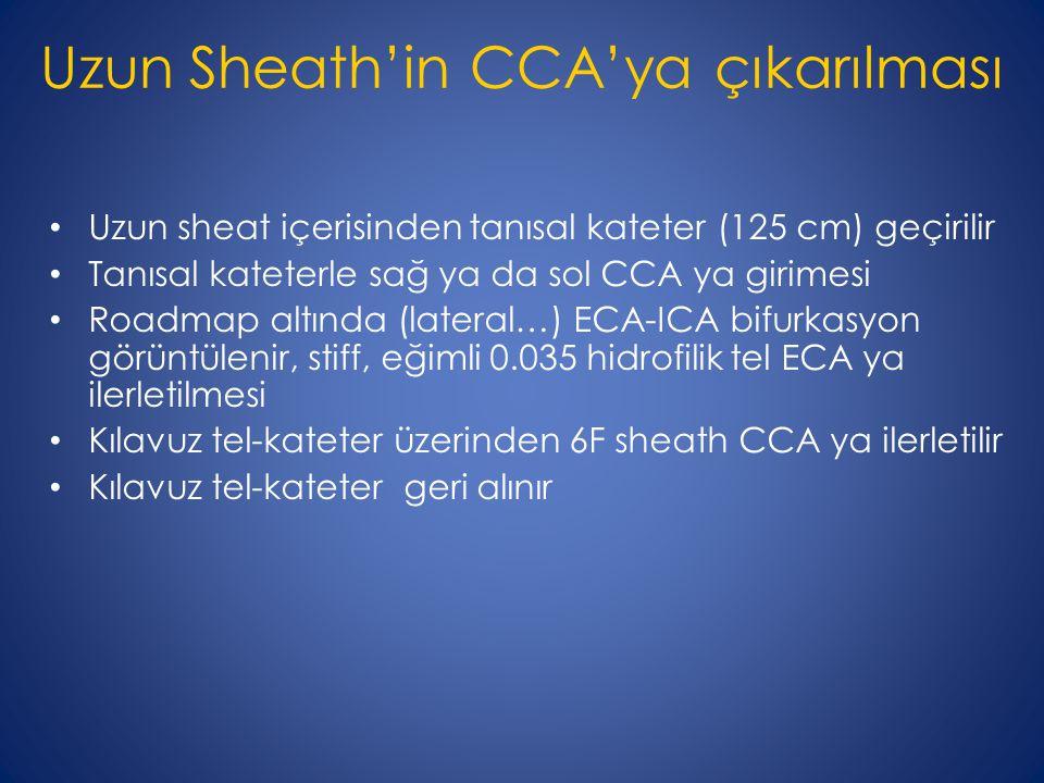 Uzun Sheath'in CCA'ya çıkarılması Uzun sheat içerisinden tanısal kateter (125 cm) geçirilir Tanısal kateterle sağ ya da sol CCA ya girimesi Roadmap altında (lateral…) ECA-ICA bifurkasyon görüntülenir, stiff, eğimli 0.035 hidrofilik tel ECA ya ilerletilmesi Kılavuz tel-kateter üzerinden 6F sheath CCA ya ilerletilir Kılavuz tel-kateter geri alınır