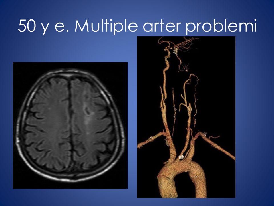 50 y e. Multiple arter problemi