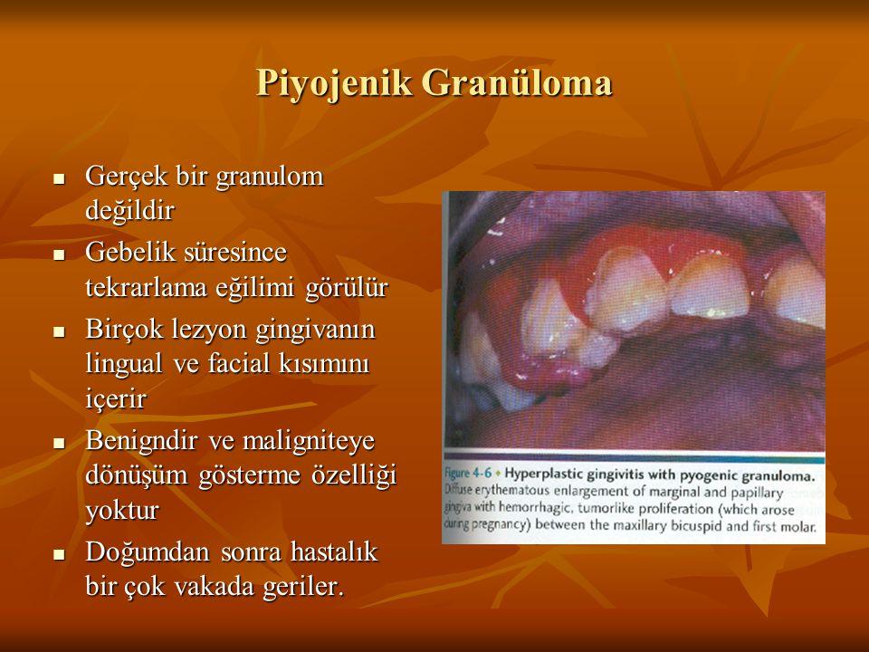 Piyojenik Granüloma Gerçek bir granulom değildir Gerçek bir granulom değildir Gebelik süresince tekrarlama eğilimi görülür Gebelik süresince tekrarlam