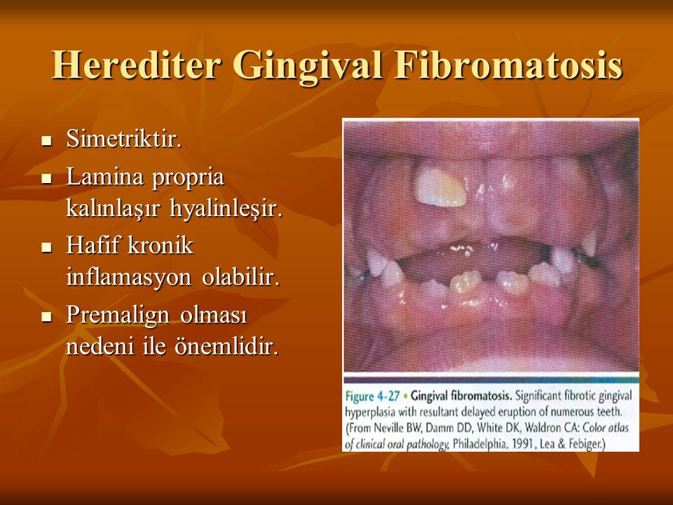 Herediter Gingival Fibromatosis Simetriktir. Simetriktir. Lamina propria kalınlaşır hyalinleşir. Lamina propria kalınlaşır hyalinleşir. Hafif kronik i