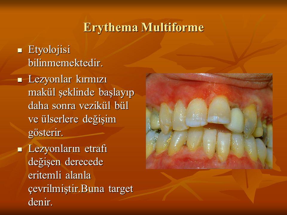 Erythema Multiforme Etyolojisi bilinmemektedir. Etyolojisi bilinmemektedir. Lezyonlar kırmızı makül şeklinde başlayıp daha sonra vezikül bül ve ülserl