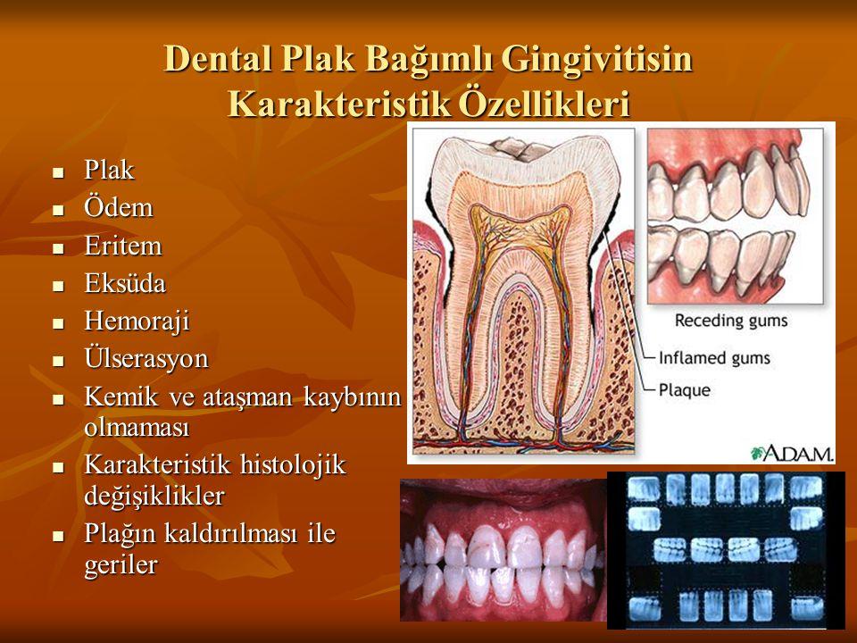 Dental Plak Bağımlı Gingivitisin Karakteristik Özellikleri Plak Plak Ödem Ödem Eritem Eritem Eksüda Eksüda Hemoraji Hemoraji Ülserasyon Ülserasyon Kem