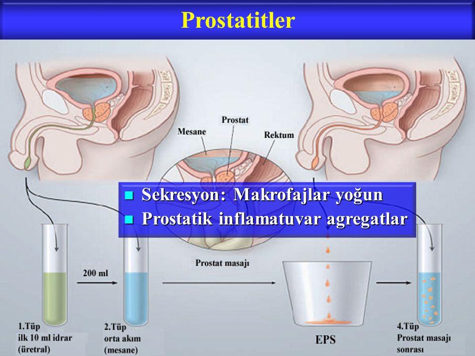 Prostatitler Sekresyon: Makrofajlar yoğun Sekresyon: Makrofajlar yoğun Prostatik inflamatuvar agregatlar Prostatik inflamatuvar agregatlar