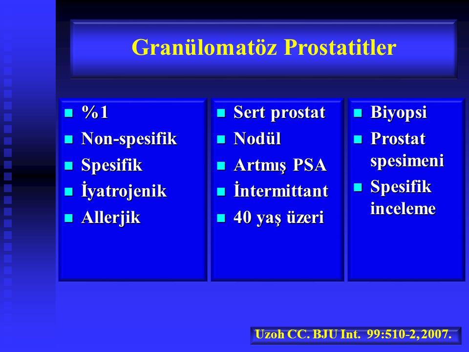 %1 %1 Non-spesifik Non-spesifik Spesifik Spesifik İyatrojenik İyatrojenik Allerjik Allerjik Granülomatöz Prostatitler Sert prostat Sert prostat Nodül Nodül Artmış PSA Artmış PSA İntermittant İntermittant 40 yaş üzeri 40 yaş üzeri Biyopsi Biyopsi Prostat spesimeni Prostat spesimeni Spesifik inceleme Spesifik inceleme Uzoh CC.