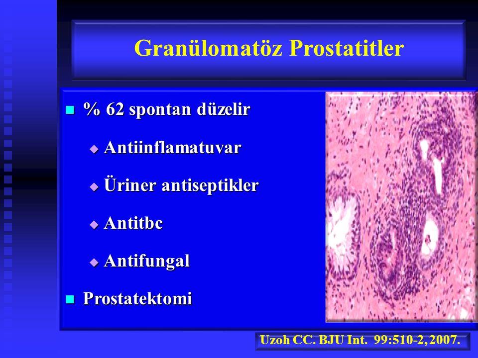 % 62 spontan düzelir % 62 spontan düzelir  Antiinflamatuvar  Üriner antiseptikler  Antitbc  Antifungal Prostatektomi Prostatektomi Granülomatöz Prostatitler Uzoh CC.