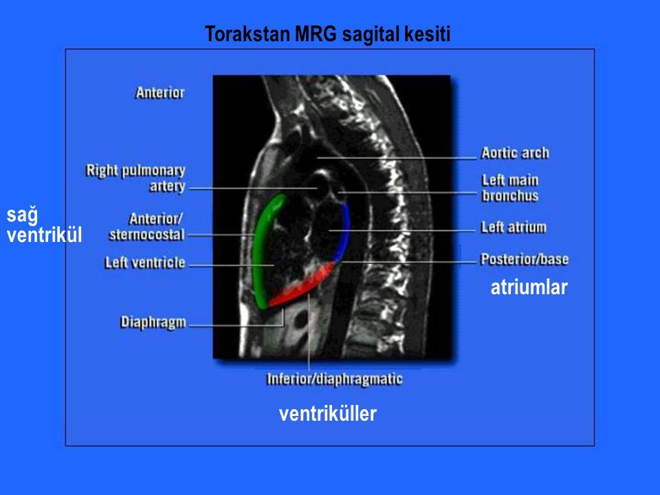 ventriküller atriumlar sağ ventrikül Torakstan MRG sagital kesiti
