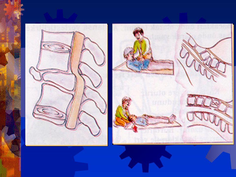 Yanlış taşıma sonucu, omurilik zedelenmesi olan bir hasta ömür boyu felçli kalabilir ! Herhangi bir yangın, patlama, zehirlenme riski olmadığı sürece
